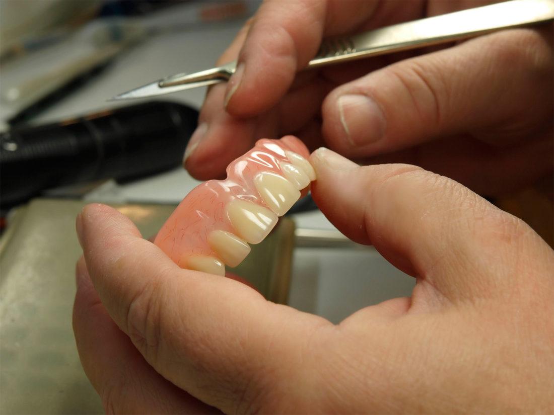Ремонт протеза