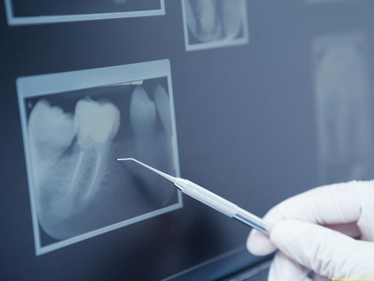Рентгенограмма зуба