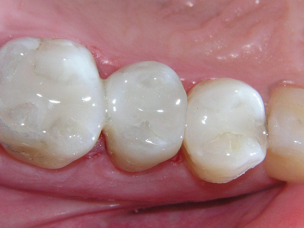 Реставрация молярных зубов