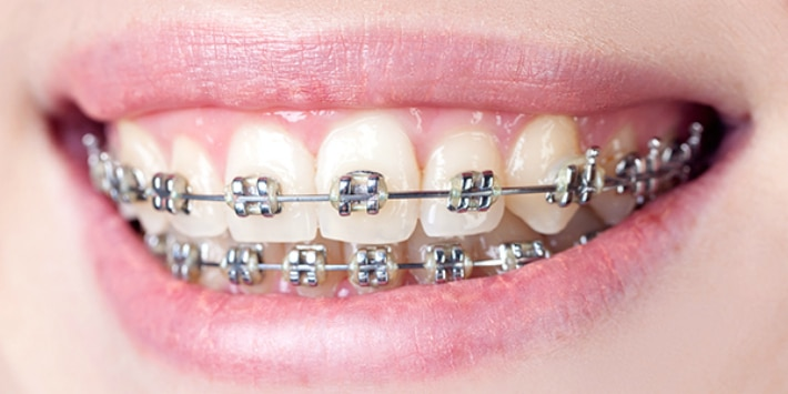 Сложные ортодонтические несъёмные конструкции