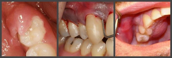 Негативные последствия роста зуба мудрости