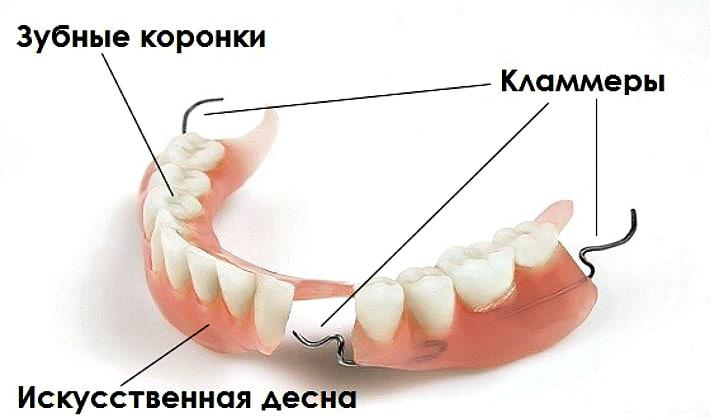 Составные компоненты протеза Quadrotti