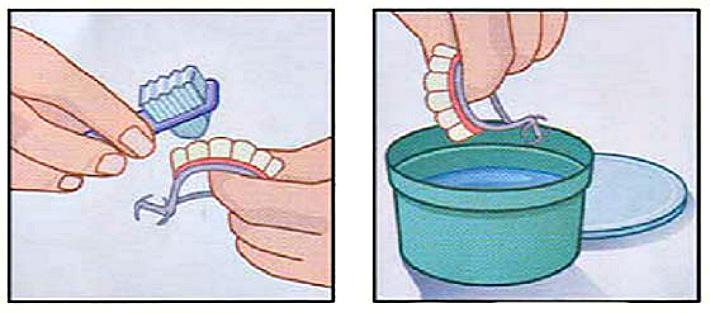 Уход за силиконовыми протезами