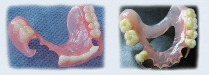 Показания к применению силиконовых протезов