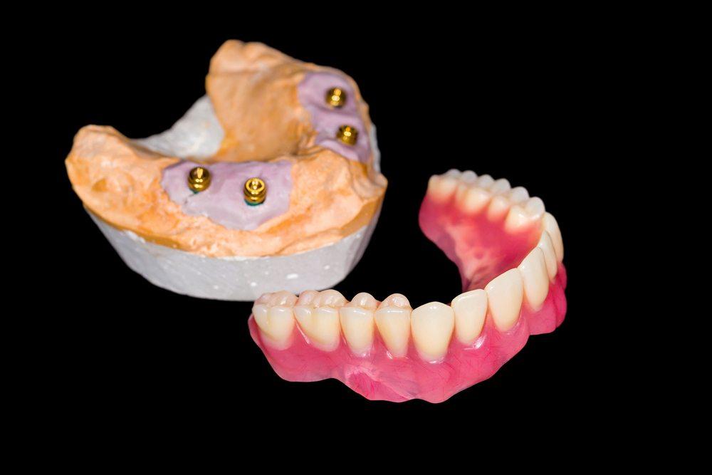 Стоматологический шаблон