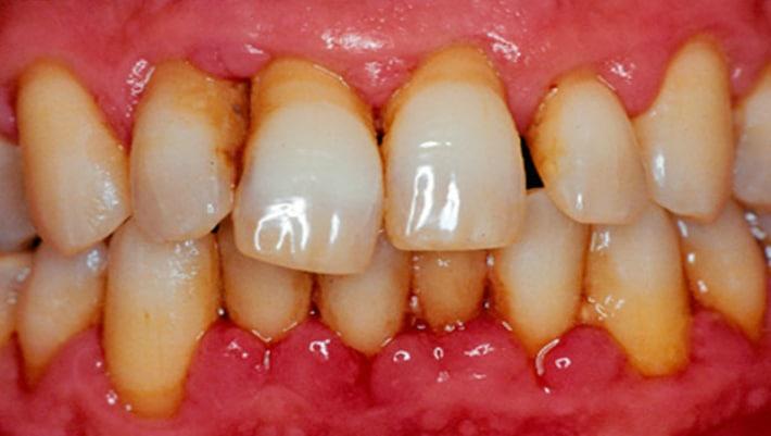 Микробный налёт на зубах