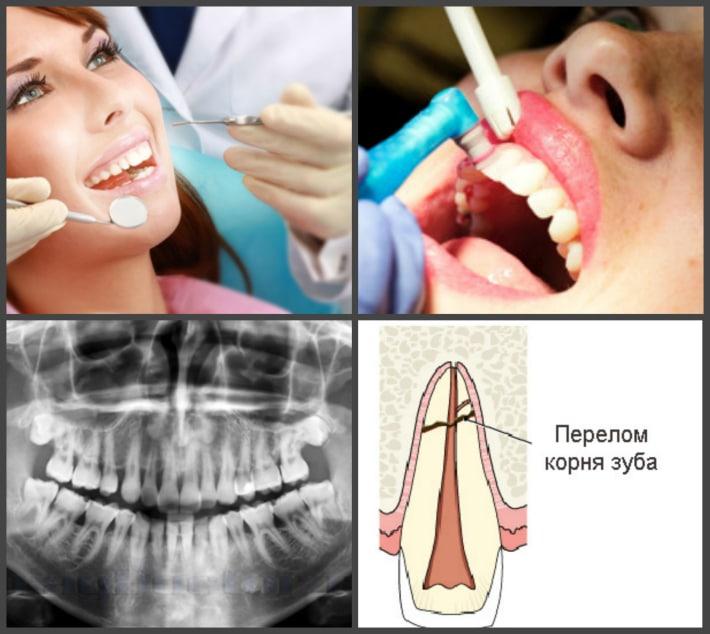 Лечение шаткости передних зубов