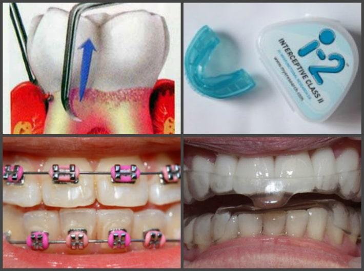 Лечении шаткости коренных зубов