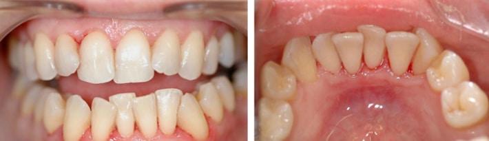 Шаткость при деформации зубного ряда