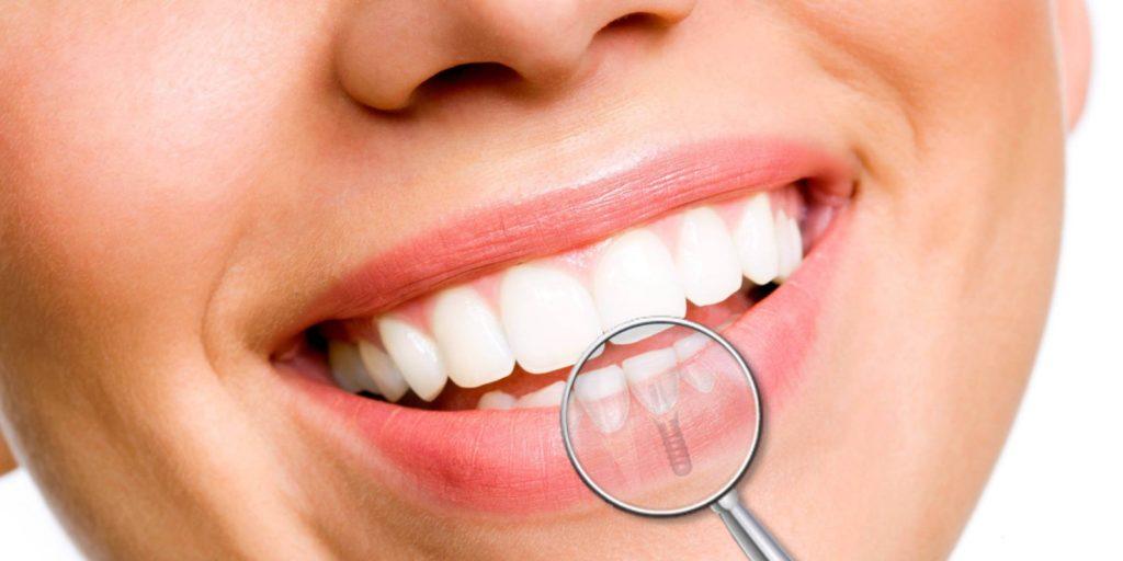 Метод наращивания зубов на штифт