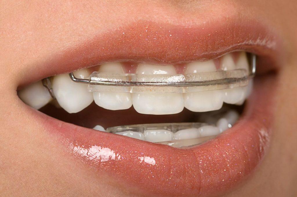 Зачем ставят скобы на зубы