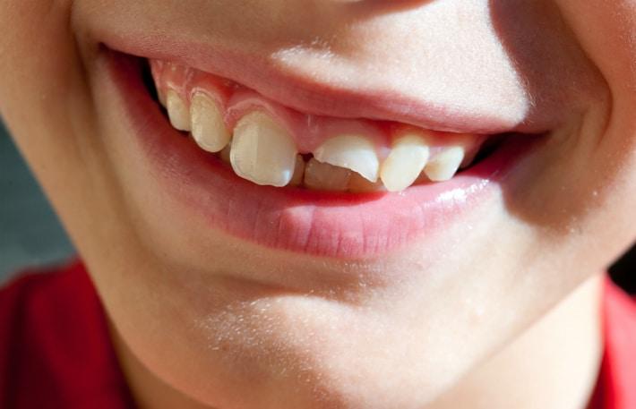 Реставрация скола зубов у детей