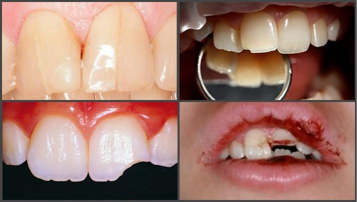Виды сколов зубов