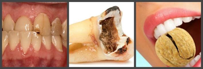 Причины сколов на зубах