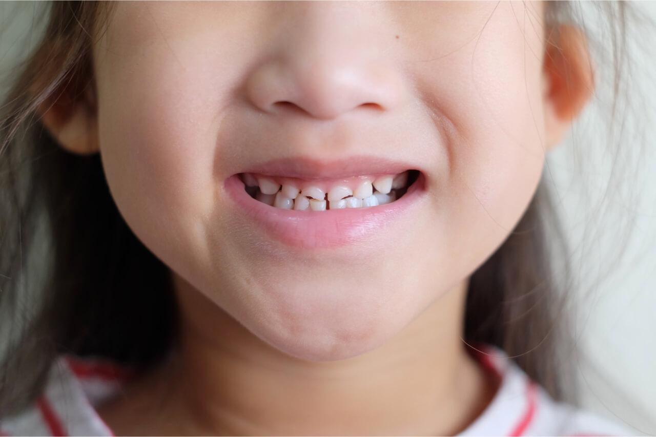 Дефекты зубов у ребенка