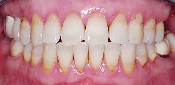 Заболевание ткани окружающей зуб