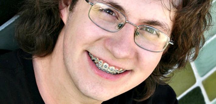 Сколько времени носят брекеты на зубах взрослые и дети: длительность