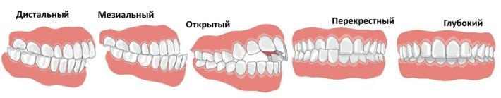 Виды прикуса зубного ряда