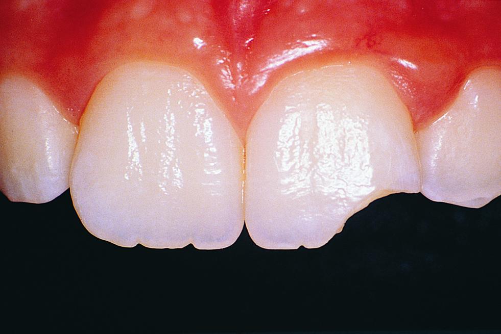 Повреждние зубов