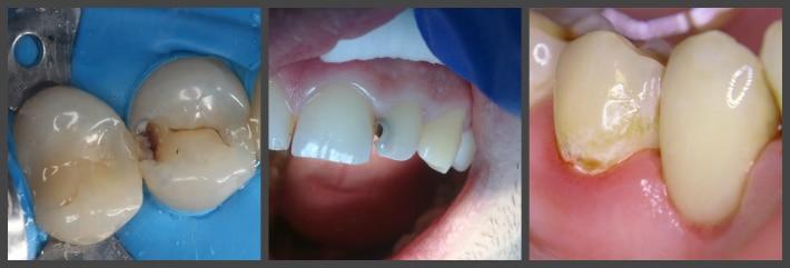 Скрытый кариес зубов