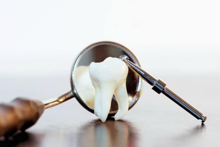 Удаление разрушенного зуба на нижней челюсти
