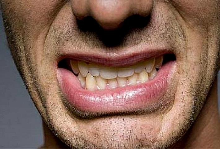 Бруксизм — скрежет зубами