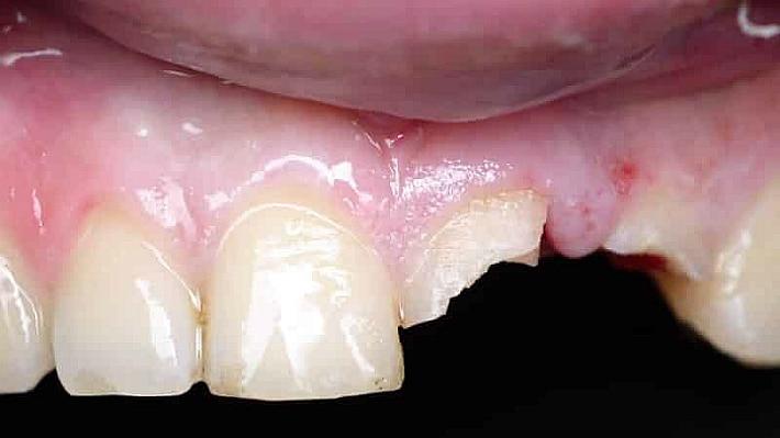 Наращивание зубов – эстетическая реставрация