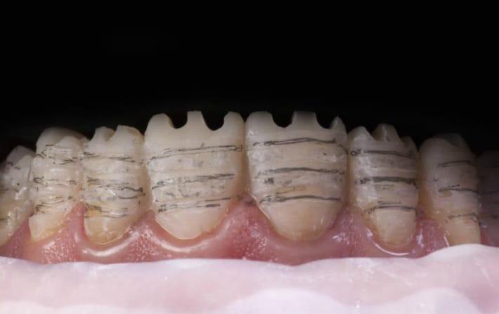 Подголовка зубов - обтачивание эмали