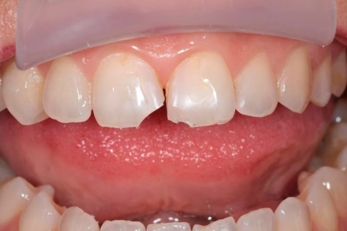 Скол эмали на зубе