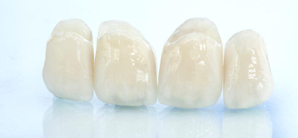 Стеклокерамические зубные коронки