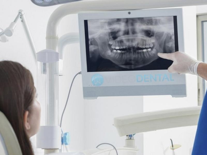 Стоматолог консультирует