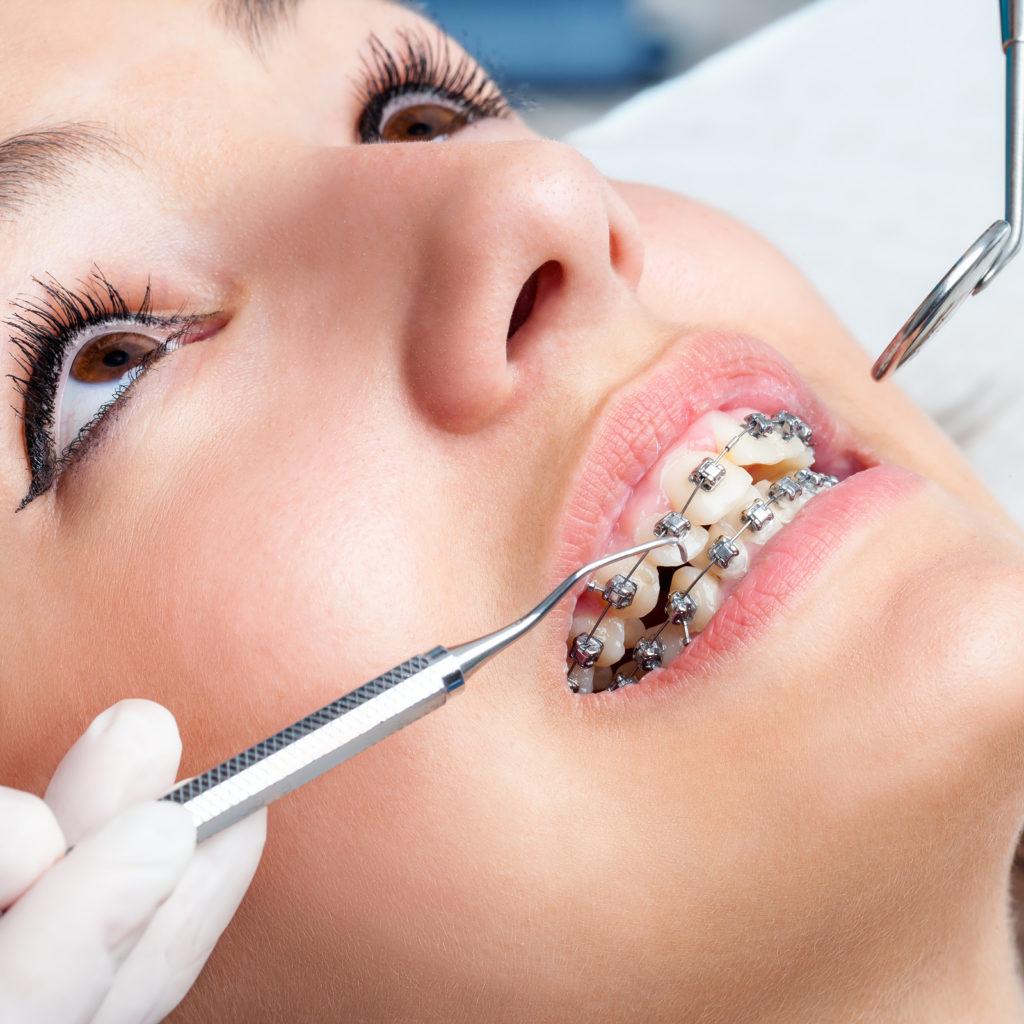 Стоматологическая процедура