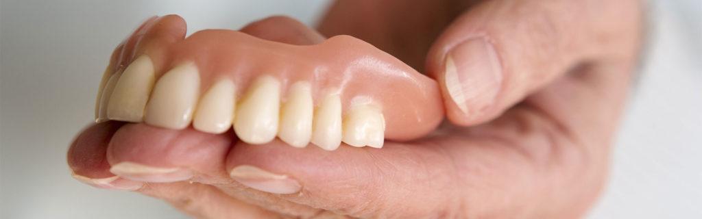 Какие бывают «вставные зубы»