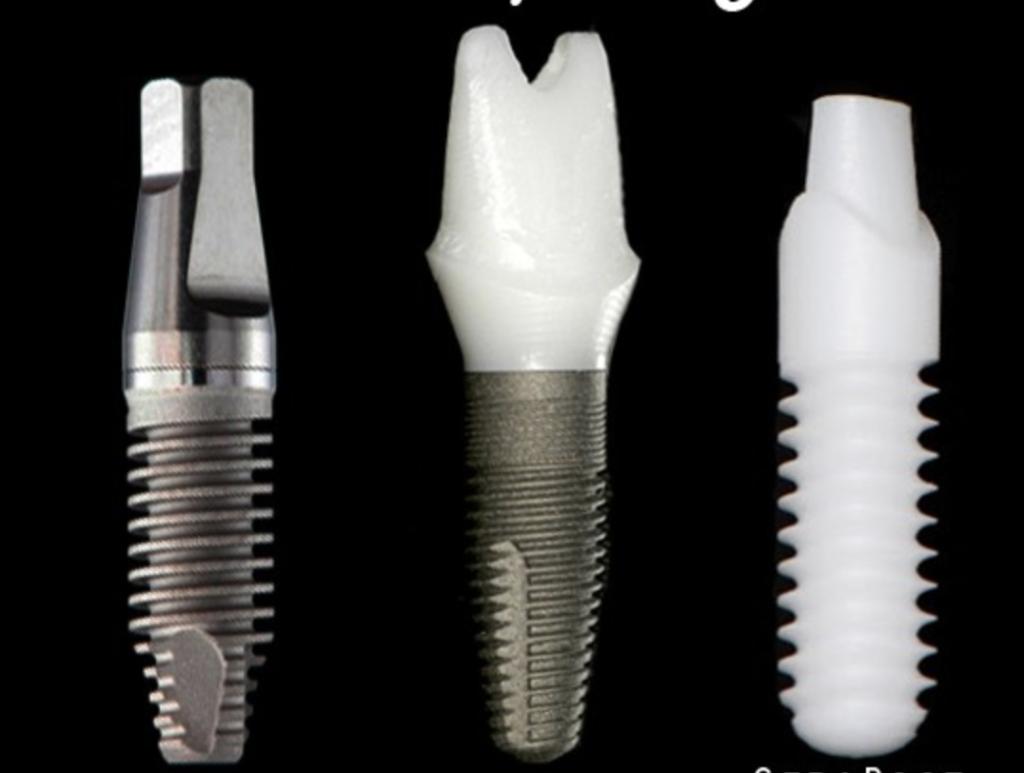 Титановые зубные импланты