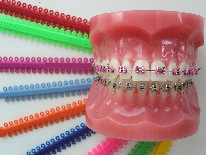 Цвет для зубных скоб