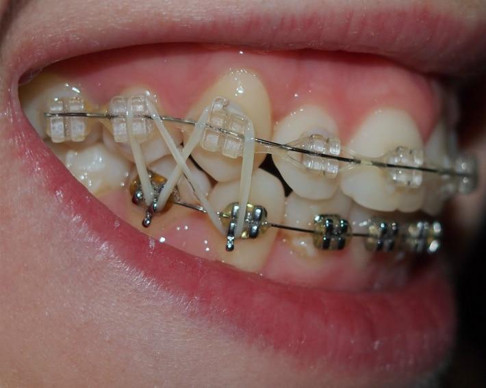 Ортодонтические тяги