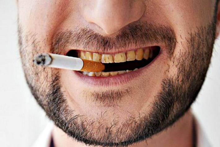Отбеливание зубов от никотина