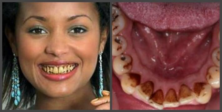 Причина образования зубного налета
