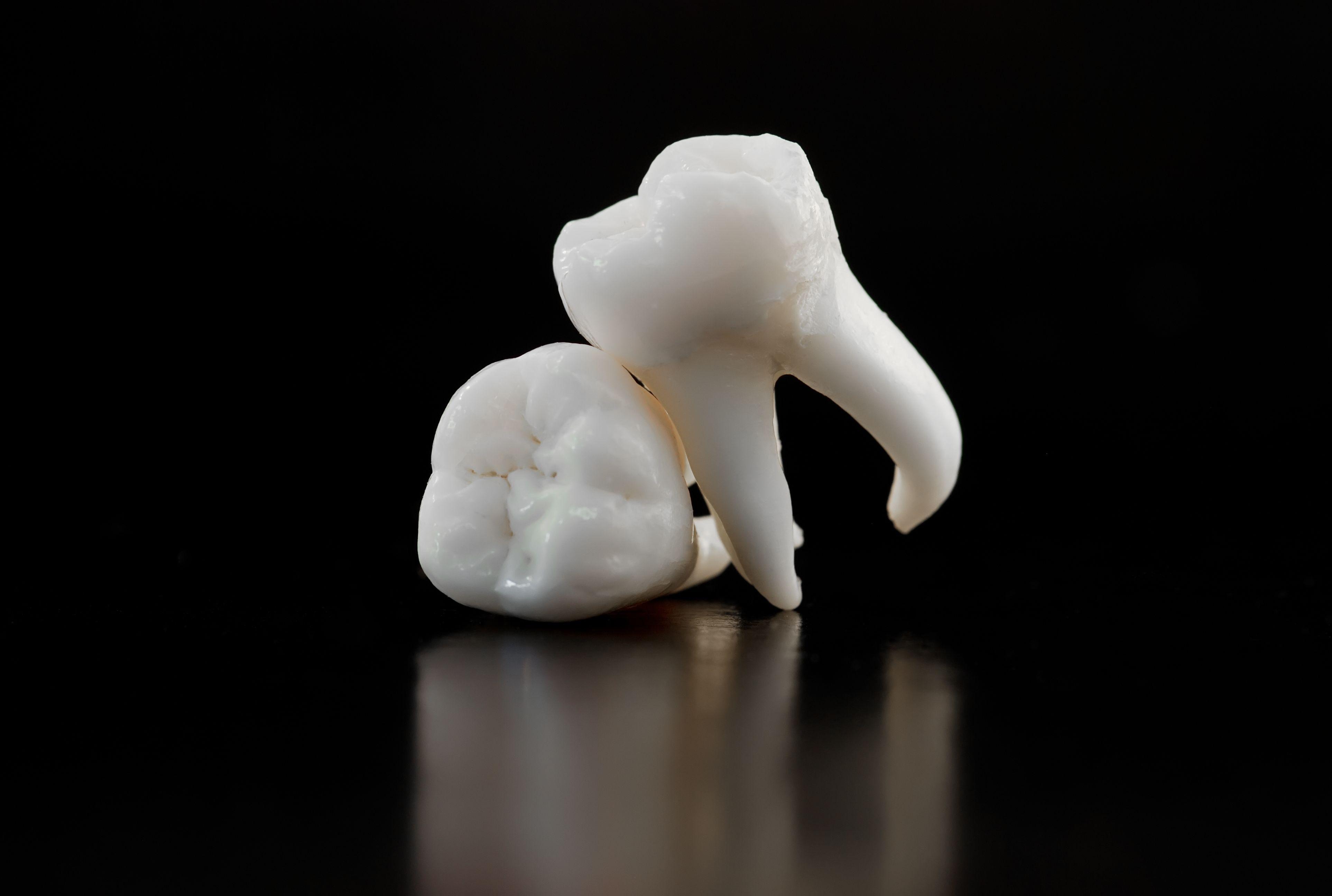 Удаленный зуб мудрости