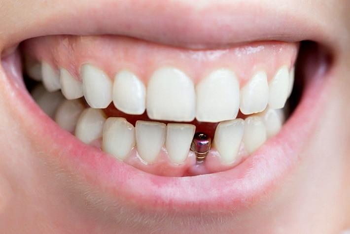 Установка импланта после удаления зуба