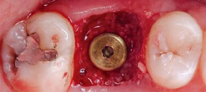 Хирургическая операция по восполнению пробелов зубного ряда