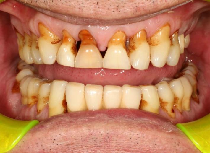 атравматичное удаление зуба при имплантации