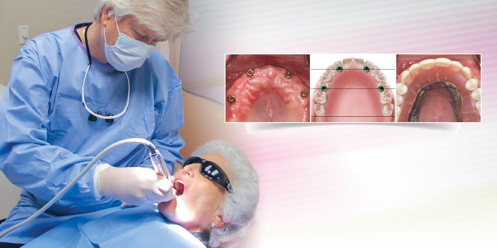 Сколько нужно имплантов при отсутствии зубов нижней челюсти