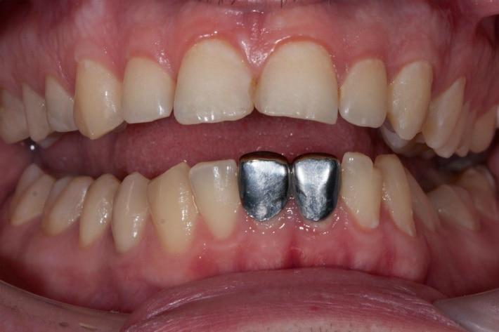 Простой и дешевый способ реставрации зубов