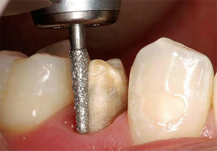 Подготовка зуба перед установкой коронки