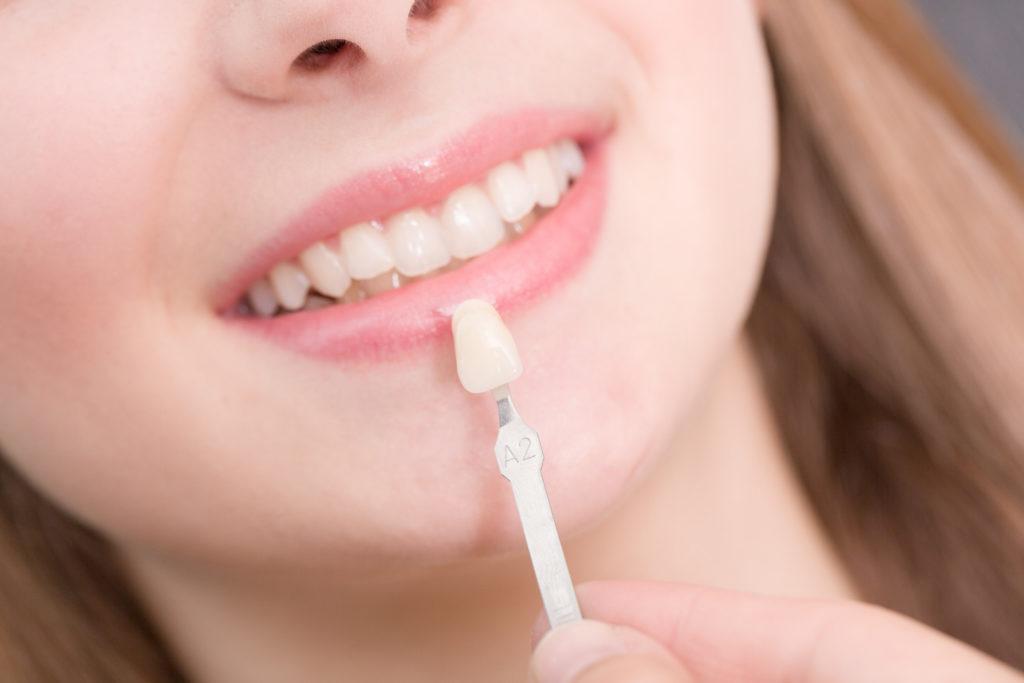 Можно ли ставить виниры на кривые зубы?