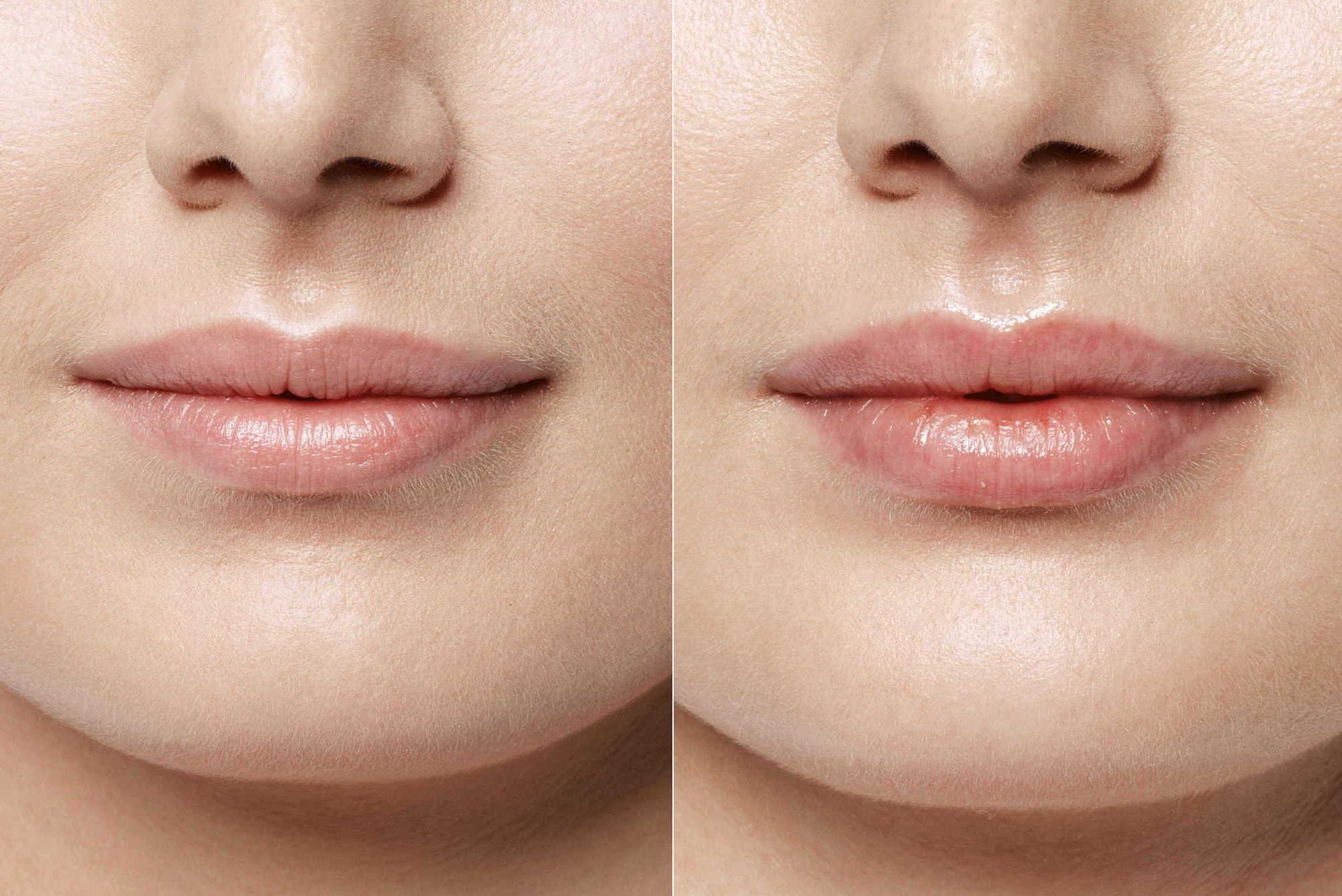 Увеличение полноты губ