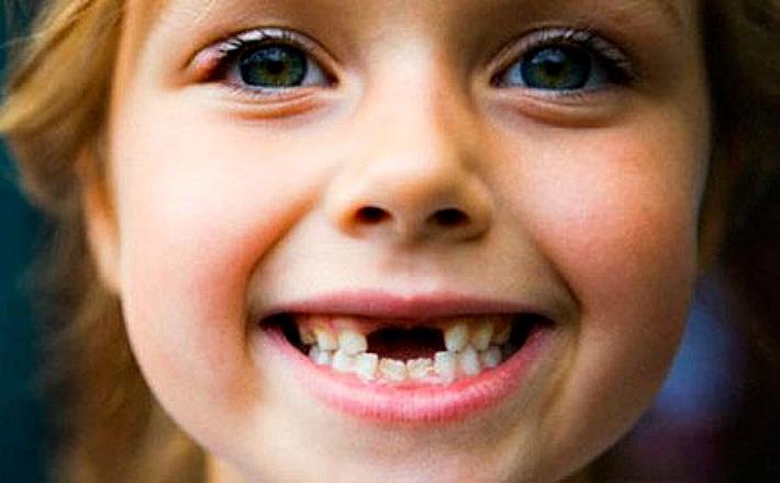 Во сколько выпадают молочные зубы