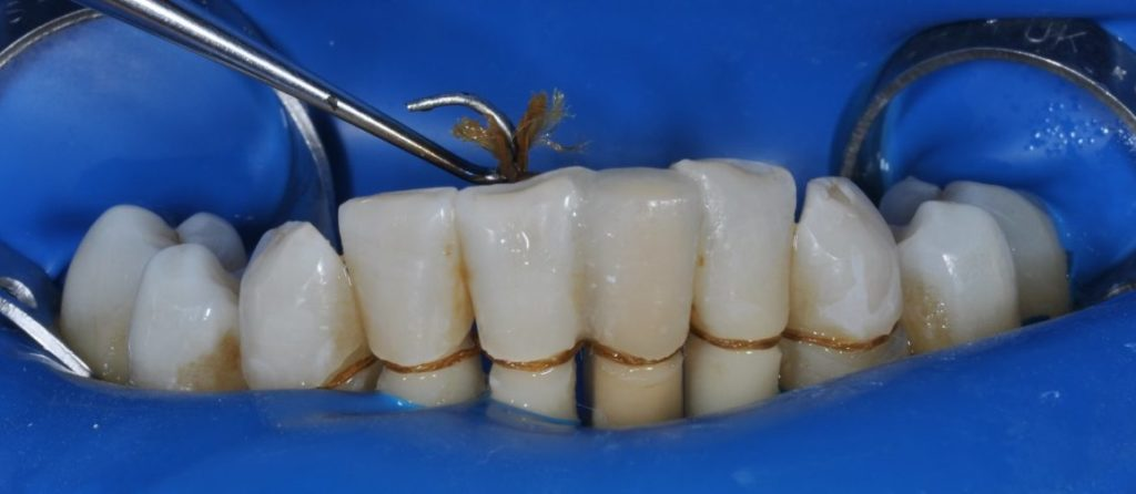 Вантовое протезирование зубов