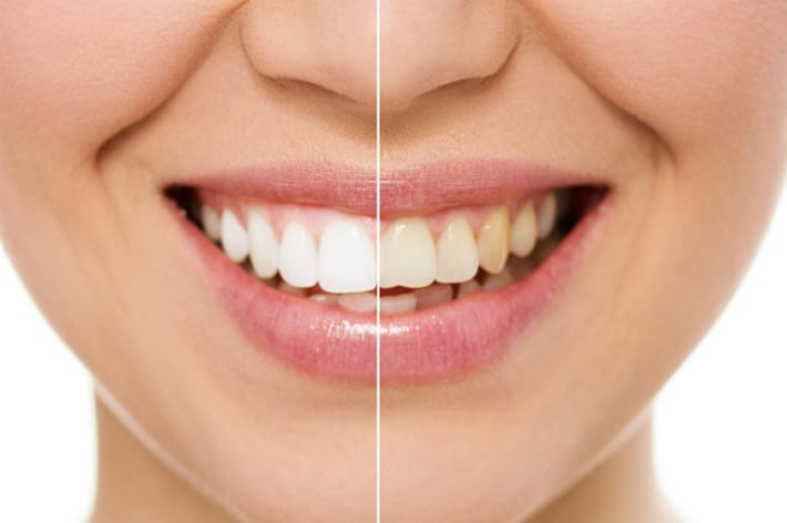 Виды зубных виниров и особенности их выбора